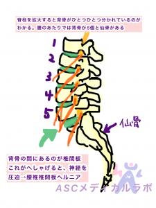 腰椎椎間板